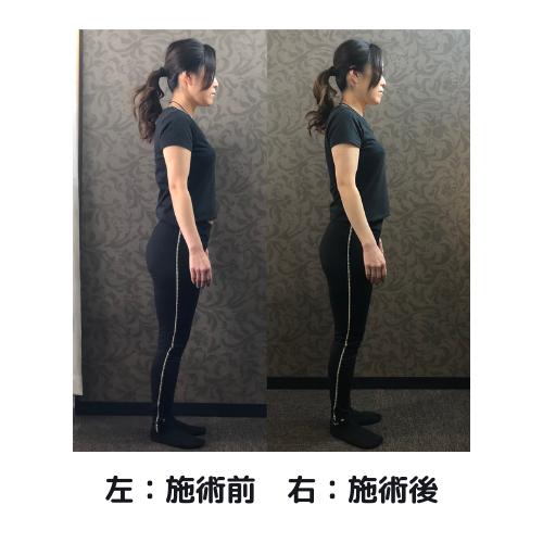 画像に alt 属性が指定されていません。ファイル名: 左:施術前-右:施術後-3.png